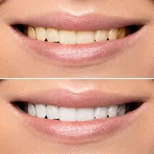Megawhite tandblekning